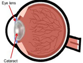 Radiation and cataract