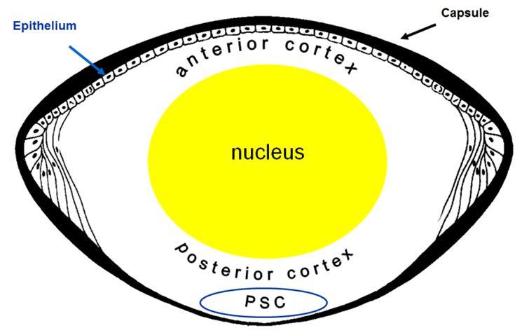 Radiation and cataract